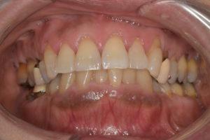 歯を白くしてみませんか?(東淀川区、ホワイトニング、永目歯科医院)